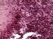Пример доброкачественной шванномы. Рис. 3. Гистология.