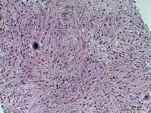 Пример злокачественной шванномы. Рис. 3. Гистология.