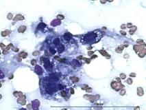 Пример злокачественной шванномы. Рис. 8. Цитология.
