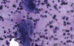 Зернистоклеточная опухоль языка у собаки породы вест-хайленд-уайт-терьер. Цитология. Рис. 5