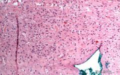 Зернистоклеточная опухоль языка у собаки породы вест-хайленд-уайт-терьер. Гистология. Рис. 6