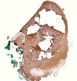 Зернистоклеточная опухоль языка у собаки породы вест-хайленд-уайт-терьер. Гистология. Рис. 12