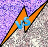 Фолликулярная лимфома и реактивная гиперплазия лимфоузлов