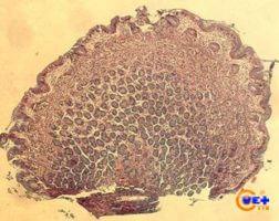 Клинический случай №1. Гистология