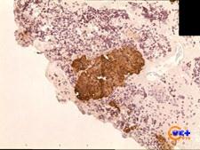 Клинический случай №3. Клеточный блок, окраска с положительной экспрессией АЕ1/АЕ3