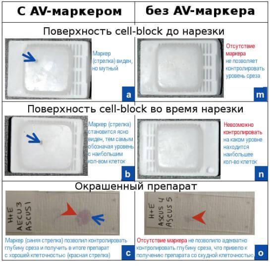 Применение AV-маркера