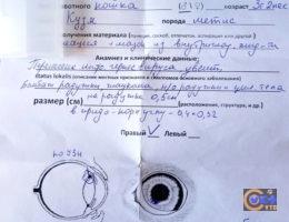 Направление на гистологию глаза