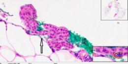 Пример гистологического «заноса». Рис. 3